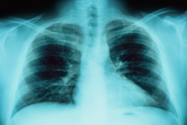 Новости кардиологии – Сердечно.ру – все о здоровье сердца – Страница: 23
