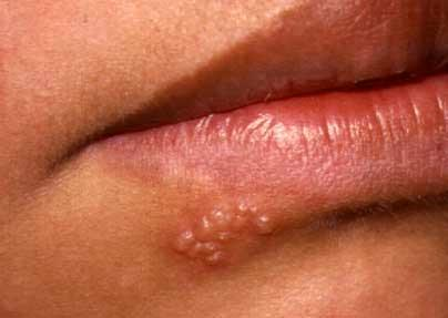 Img how to recognise cold sores on lip 1270 600
