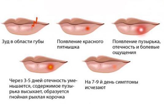 Simptomu gerpesa