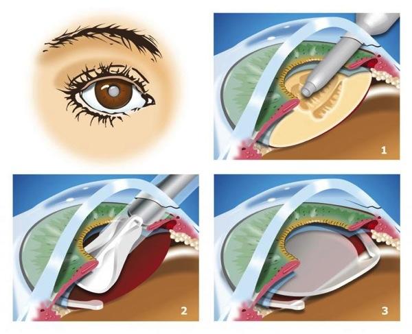 Cataract getty GE